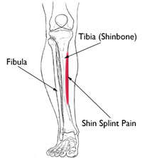 Shin Splints causes