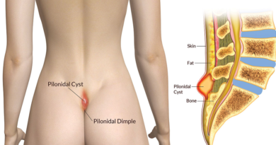 Pilonidal cyst location images