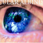 Ocular Albinism