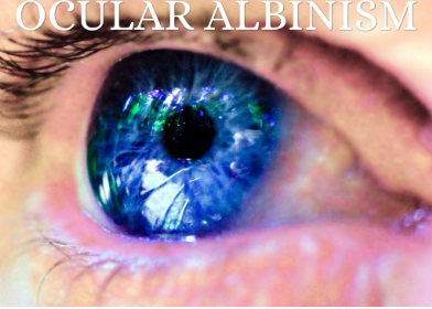 Ocular Albinism Picture