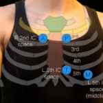 Sternal Angle