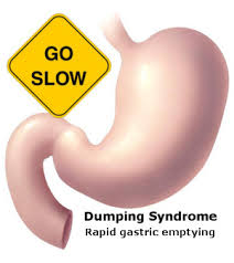Dumping Syndrome And Rapid Gastric Emptying