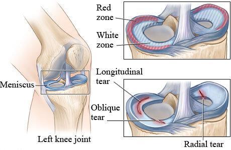 medial meniscus tears 2