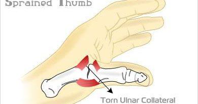 sprained thumb