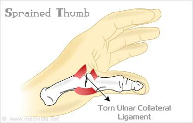 sprained thumb