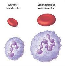 macrocytic anemia cells
