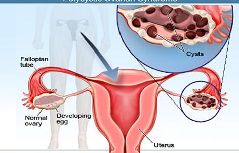 Hemorrhagic Cyst (ovary)