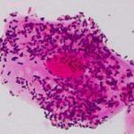 Gardnerella Vaginalis