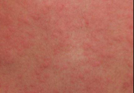 Cholinergic Urticaria images