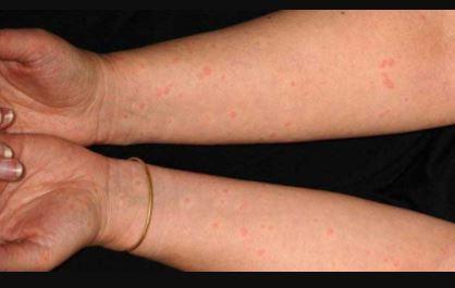 Cholinergic Urticaria pics