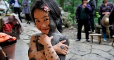Wolf Skin Disease